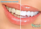 Dental Clean Foto 3 - Guia CB