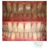 Dental Clean Foto 7 - Guia CB
